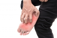 How Did I Contract Athlete's Foot?