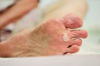Where Are Plantar Warts Located?