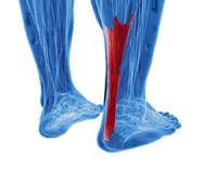 Possible Causes Of An Achilles Tendon Injury